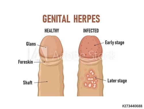 STD - GENITAL HERPES